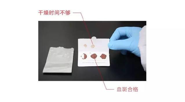 检测人员收到干血斑样本后,检查干血斑是否合格