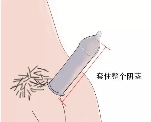 09  使用时让安全套套住整个阴茎。