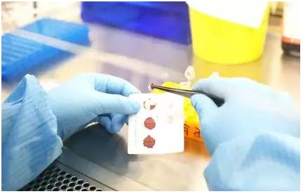 检测人员收到干血斑样本后,检查干血斑是否采集满、污染、潮湿等来检验否合格