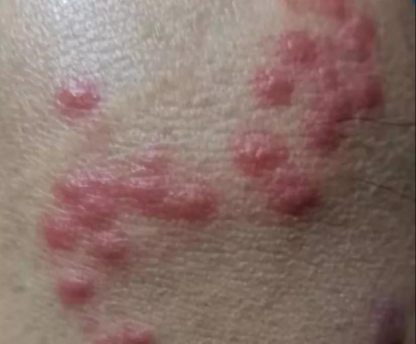 疼痛,起泡的皮疹
