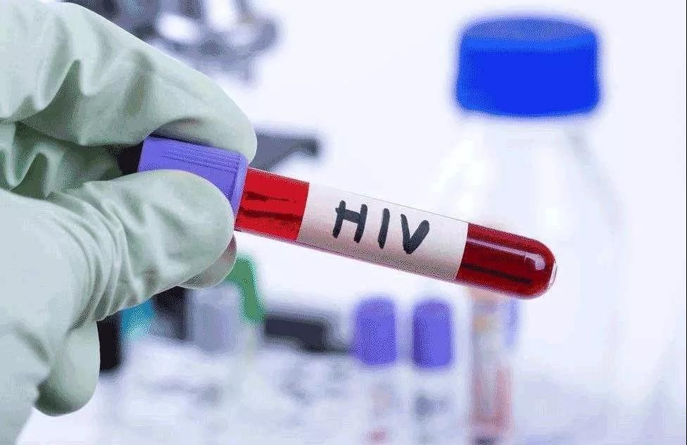 美国CDC便推荐,每一名13-64岁的人,都应至少接受一次HIV检测。
