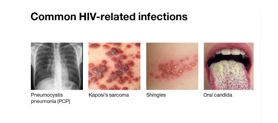 导致多种感染性和炎症性皮肤黏膜疾病的发生。